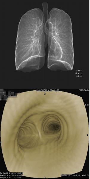 仮想気管支内視鏡
