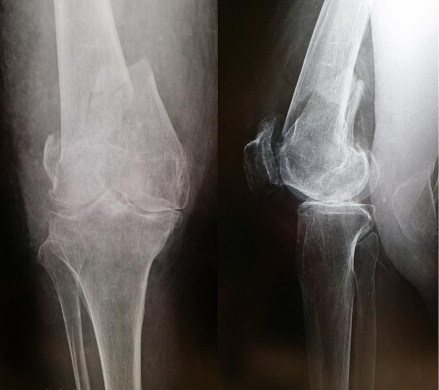 大腿骨顆上骨折