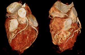 心臓の血管を 3D で評価します。