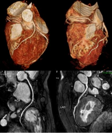 心臓 MRI 検査