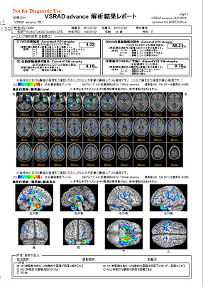 早期アルツハイマー型認知症診断支援システム