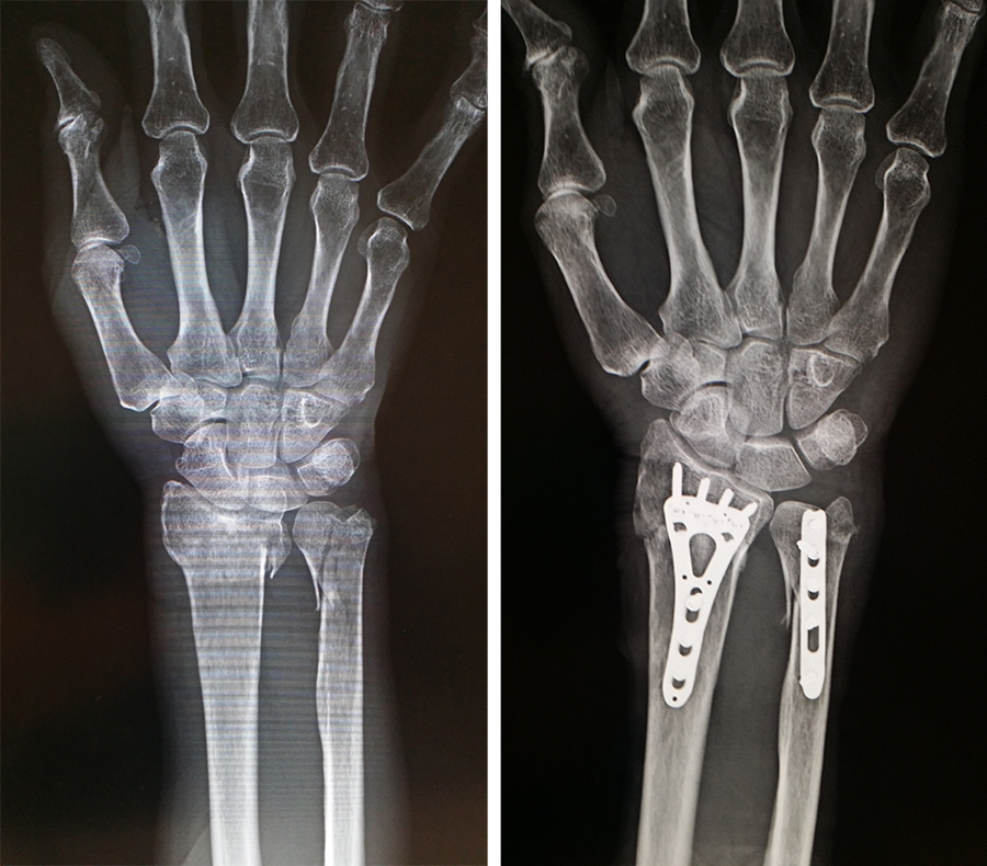 橈骨尺骨遠位端骨折