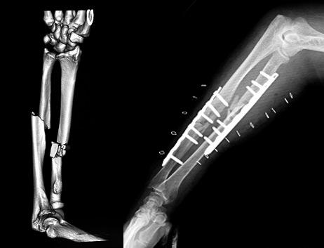 橈骨尺骨骨幹部骨折