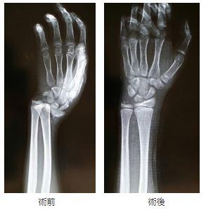橈骨骨端線損傷