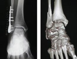 足関節果部骨折