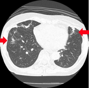 非定型抗酸菌症