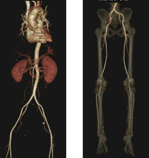 3D-CT angiography(3D-CTA)
